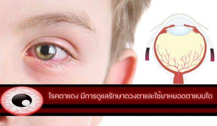 โรคตาแดง อาหารที่มีส่วนช่วยในการป้องกันโรคตาแดงมีอะไรบ้าง