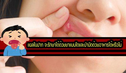 แผลในปาก จะรักษาได้ด้วยยาแบบใดและบำบัดด้วยอาหารได้หรือไม่